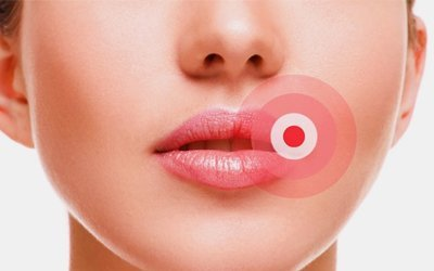 5 Most Common Lip Problems